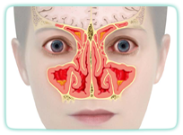 Kieferhöhlenentzündung